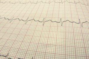 symptomen hartstilstand